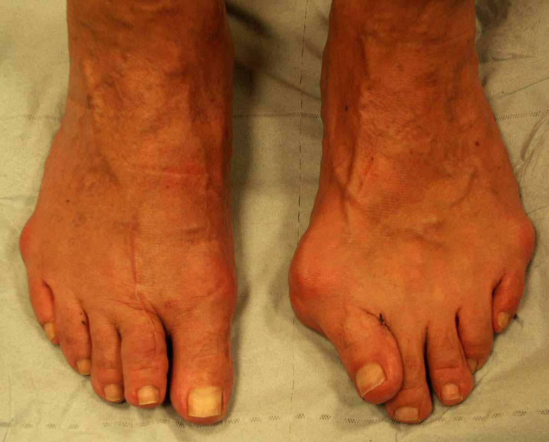 Shoes For Osteoarthritis Of Big Toe