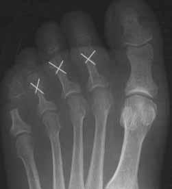 Toe Deformities | The Tagoe Clinic
