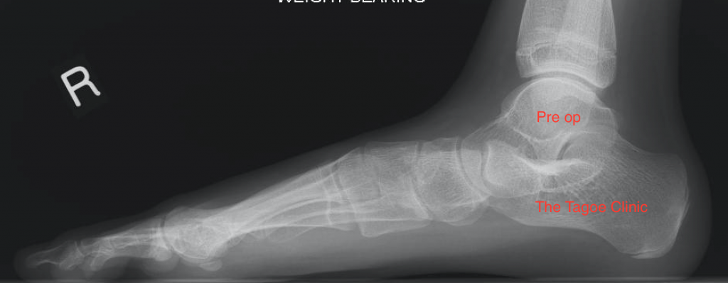 Pre-operative X-ray of the right foot