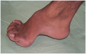 High Arched Feet Tube